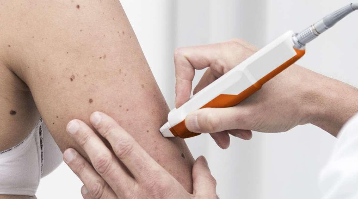 Hautkrebsvorsorge mit modernster Technik