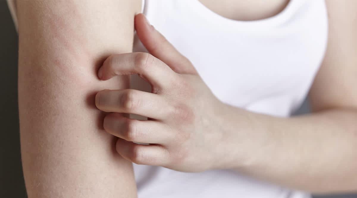 Die chronische Hauterkrankung Neurodermitis bedeutet quälenden Juckreiz