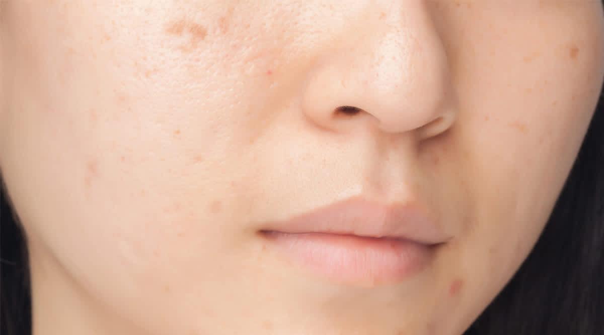 Akne ist mehr als ein kosmetisches Problem
