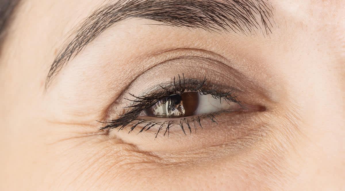 Schönere Augen durch Filler