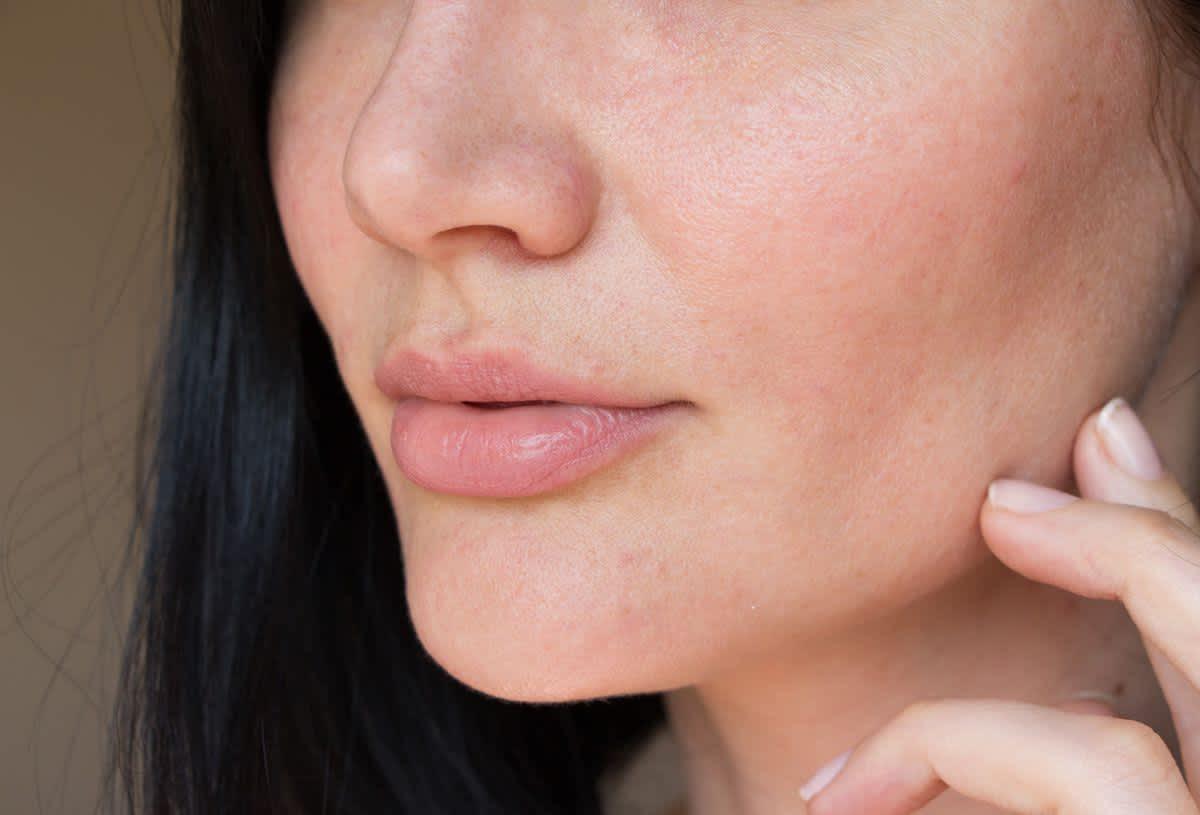 kosmetische Aknebehandlungen
