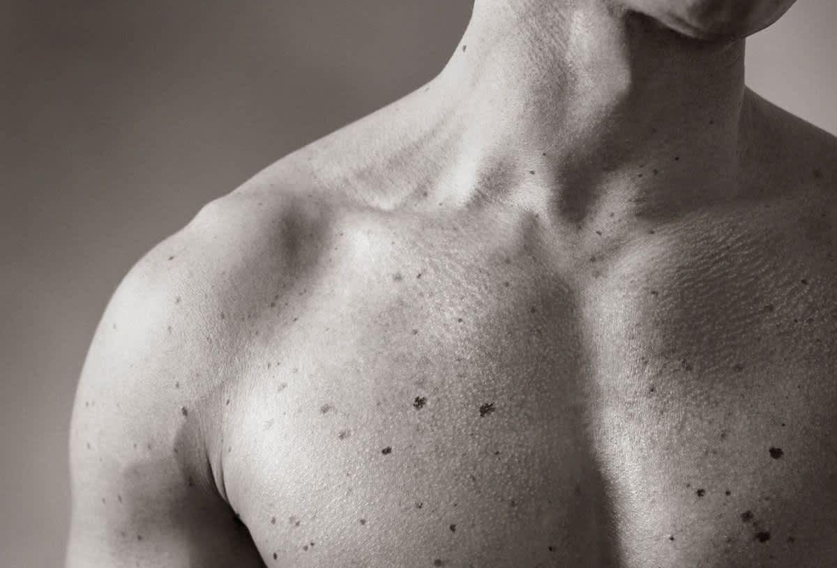 Hautkrebsvorsorge und -therapie