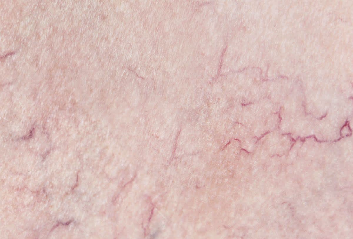 rote Hautgefäße und Couperose